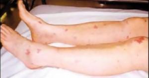 ارتفاع حصيلة ضحايا حمى الضنك في ماليزيا إلى 44 حالة وفاة خلال 5 أسابيع