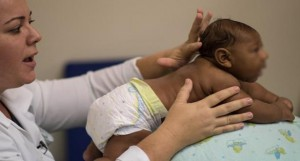 ولادة أول طفل في كندا بتشوهات خلقية بسبب فيروس زيكا